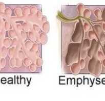 Эмфизема лечение и пневмосклероз легких