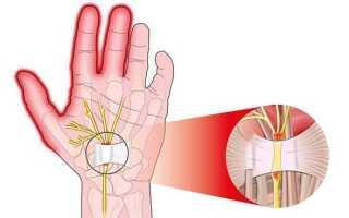 Немеет пальцы левая рука причины и лечение