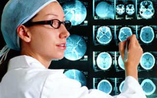 Симптомы и лечение менингита