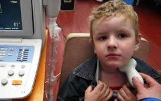 Кисты на щитовидной железе у детей причины и лечение