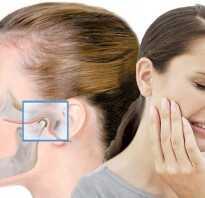 Как лечить артрит челюстной?