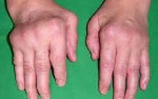 Хронический полиартрит симптомы и лечение