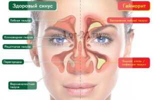 Народные средства лечения хронического гайморита
