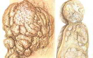 Что такое фиброма и как ее лечить?