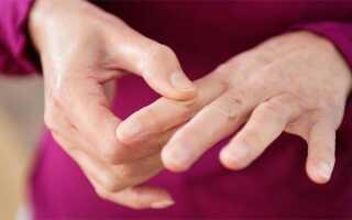 Как лечить суставы пальцев?