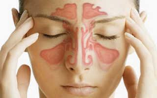 Заложенность носа лечить