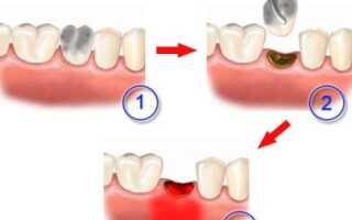 Альвеолит после удаления зуба мудрости симптомы и лечение