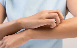 Аллергический контактный дерматит симптомы и лечение