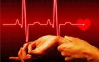 Синусовая брадикардия симптомы и лечение