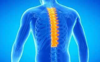 Что такое остеохондроз грудного отдела позвоночника и как его лечить?