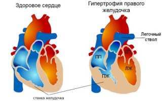 Атрофия правого желудочка сердца чем опасна симптомы как лечить
