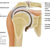 Деформирующий артроз плечевого сустава как лечить