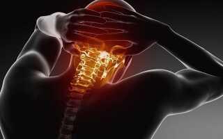 Болит голова и шея как лечить