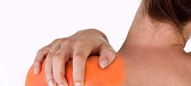 Плечелопаточный периартрит симптомы и лечение какой врач лечит