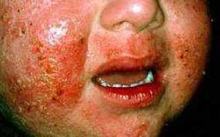 Атопический дерматит детский лечение