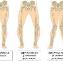 Вальгусные колени у детей лечение