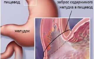 Рефлюкс эзофагит симптомы и лечение таблетки
