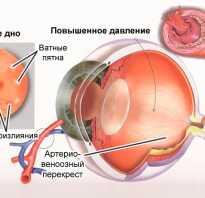 Глаукома причины симптомы лечение и профилактика норма глазного давления