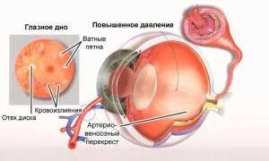 Глазное давление симптомы и лечение у взрослых