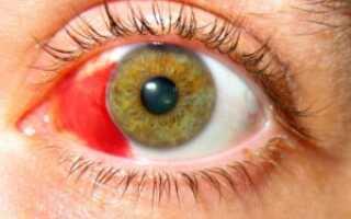 Как лечить внутриглазное кровоизлияние?