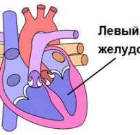 Лечение левый желудочек сердца