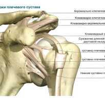 Порваны связки плечевого сустава лечение