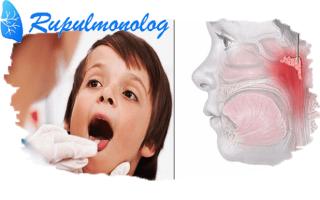 Чем лечить кашель при аденоидите