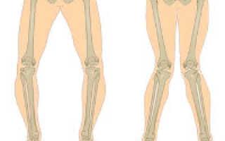 Вальгусная деформация коленных суставов у подростка лечение