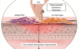 Кожное заболевание экзема симптомы и лечение