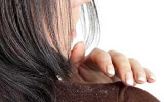 Шелушение и зуд кожи головы как лечить