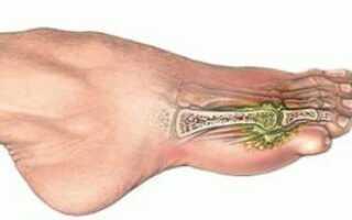 Перелом пальца ноги как лечить