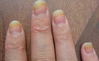 Болезнь ногтей на руках лечение