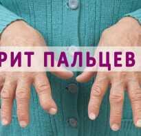 Артрит рук как лечить