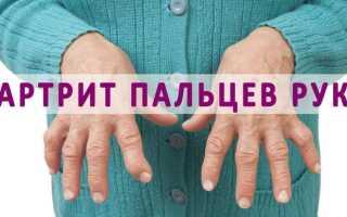 Чем лечить суставы кистей рук