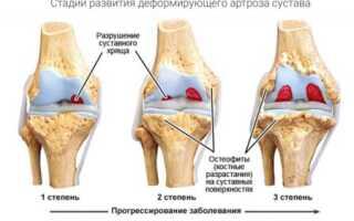 Лечение ревматоидного артрита скипидаром