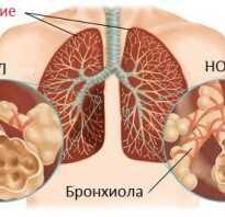 Хобл симптомы диагностика лечение