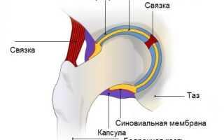Синусит тазобедренного сустава симптомы и лечение