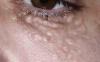 Жировик на глазном яблоке причины и лечение