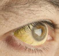 Желтые глаза лечение