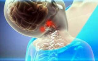 Гипоплазия правой па что это такое как лечить