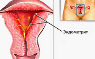 Чем лечат эндометрит