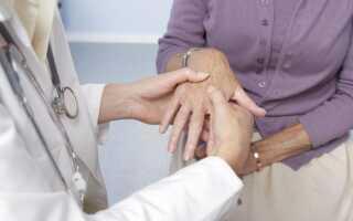 Ревматоидный артрит симптомы лечение диагностика пальцев рук
