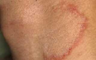 Дерматомикоз симптомы и лечение у человека