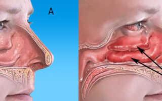 Болит нос снаружи при нажатии чем лечить