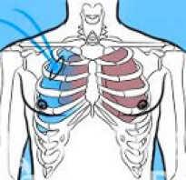 Пневмоторакс лечение симптомы