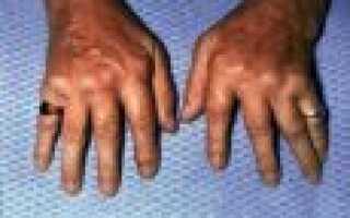 Лечение идиопатический фиброзирующий альвеолит