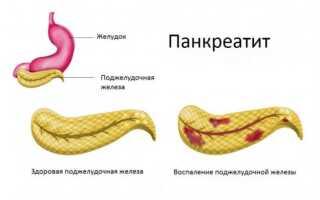 Консервативное лечение панкреатита