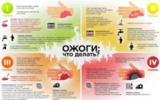 Чем лечить термический ожог кожи