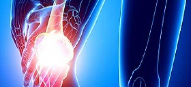 Повреждение коленных связок лечение