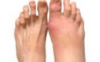 Артрит стопы ног симптомы и лечение